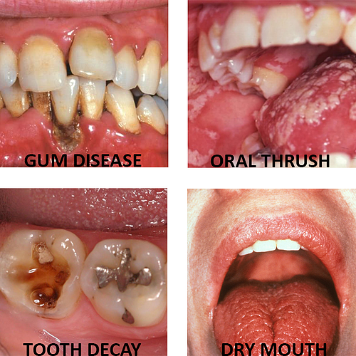 Oral health issues linked to diabetes