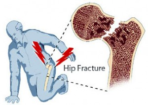 8 ways to minimise the risk of Osteoporosis and hip fractures
