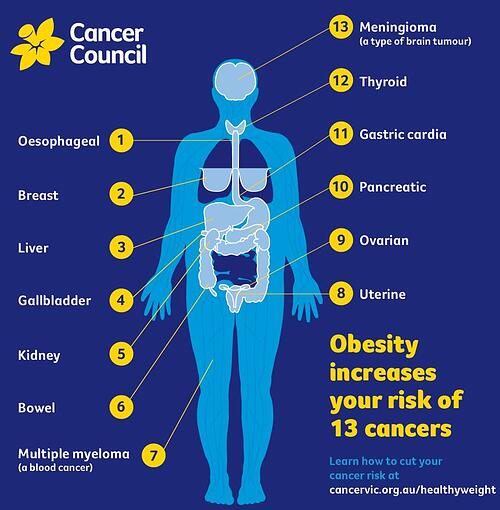 Obesity increases your risk of 13 types of cancer