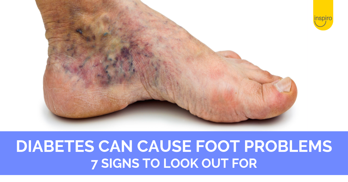 7 foot problems that might mean you have diabetes